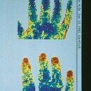 Laser-Doppler. Finger und Hand vor (unten) und nach (oben) Kälteprovokation, blau - minderperfund...