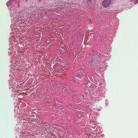 Leiomyom. Unscharf begrenzter Tumor mit unregelmäßig gestalteten, miteinander verwobenen Konvolut...