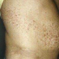 Leiomyome (segmental kutane Leiomyomatose). Bandförmig angelegte, dicht stehende, multiple, rötli...