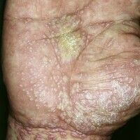Lichen planus palmoplantaris. Bei einem 45-jährigen Mann bestehen schlagartig aufgetretene, stark...