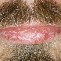 Lichen planus. Völlig symptomloser, teils streifig angeordneter, teils anulärer Lichen planus der...