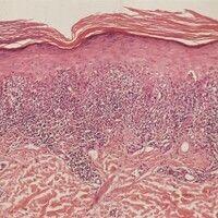 Lichen planus. Übersicht mit pathognomischer feingeweblicher Architektur des LP. Bandförmiges (ni...