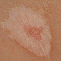 Lichen sclerosus et atrophicus. Extragenitaler Befall. Detailaufnahme