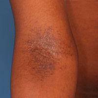 Lichen simplex chronicusin dunkler Haut.0,1-0,2 cm große, randlich disseminierte, feste braun-s...