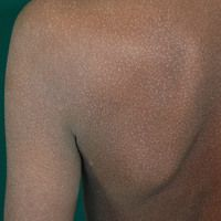 Lichen nitidus in dunkler Haut. Generalisierte Form.