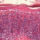 Lichen planus atrophicans. Dichtes bandförmiges lymphozytäres Infiltrat. Deutliche Epidermotropie...