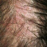 Lichen planus follicularis capillitii. Zunehmender Haarausfall bei bekanntem Lichen planus (Extre...