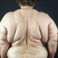 Lipomatose, benigne symmetrische. 67 Jahre alte Patientin mit kontinuierlich zunehmender Lipomato...