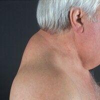 Lipomatose, benigne symmetrische-Typ I. 66 Jahre alter, früher vollkommen schlanker Patient. Ausb...