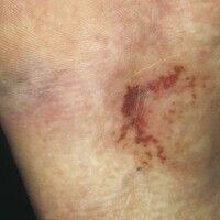 Livedo racemosa. Livide und bräunlich-rote, blitzfigurenartige Streifen und Netze an der Fußsohle...