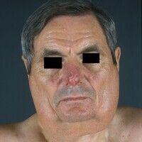 Lipomatose, benigne symmetrische Typ I) . 64 Jahre alter Patient. Typischer Madelung`scher Fettha...