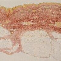 Livedo racemosa. Histologie, Übersichtsvergrößerung. Gefäßverschluss im tiefen Korium. Elastica v...