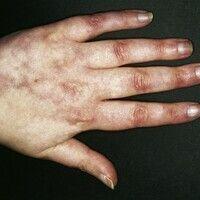 Livedo racemosa. 37 Jahre alte Patientin. Die vorliegenden Hautveränderungen (einschließlich Rayn...