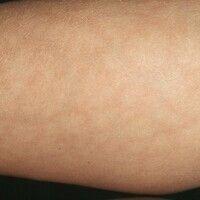 Livedo reticularis. Großmaschige, livide Marmorierung am linken Unterarm einer 30-jährigen Patien...