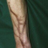 Melanodermia factitia. Streifige, an den Venenverlauf gebundene, bräunliche Pigmentierung nach Ch...
