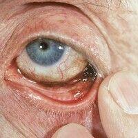 Melanom, malignes. Schwarz pigmentierter Knoten im Bereich der Bindehaut des lateralen Augenwinke...