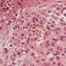 Melanom, malignes. Nekrobiotisches Oberflächenepithel durchsetzt mit Tumorzellen. Kompakte Tumori...