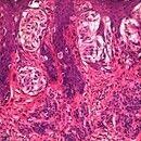 Melanom, malignes. Ausschnitt mit Anteilen des melanozytären Naevus (unten); im oberen Bildabschn...