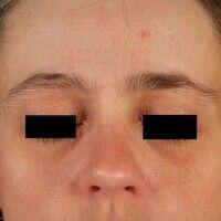 Atopische Liddermatitis: bräunliche Hyperpigmentierung des Unterlides (dezenter ausgeprägt am Obe...