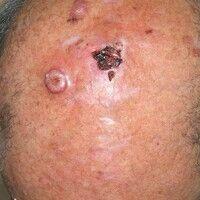 Plattenepithelkarzinom in aktinisch vorgeschädigter Kopfhaut:Seit etwa 7 Monaten bestehender, k...