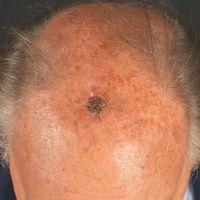 Plattenepithelkarzinom in aktinisch vorgeschädigter Kopfhaut:Seit mehreren Monaten bestehender,...