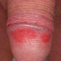 DD Erythroplasie: Balanitis plasmacellularis: Seit 1,5 Jahren rezidivierende, zwischenzeitlich a...