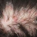 Büschelhaare:Folliculitis decalvans. Im Zentrum spiegelnde Narbenplatte mit dochtartigen Haarbüsc...