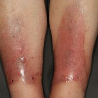 Bullosis diabeticorum: Spontanaufgetretene großflächige, subepitheliale Blasenbildngan beiden U...