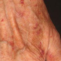 Amyloidose systemische: Flächige hellbraune, symptomlose Plaques an beiden Handrücken. Rezidivier...