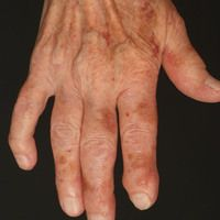 Amyloidose systemische: Flächige hellbraune, symptomlose Plaques an beiden Handrücken und den Fin...