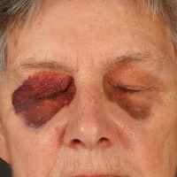AL-Amyloidose bei Smoldering Myeloma. Bei dem 77jährigen Patienten bestehen, ohne ersichtlichen G...