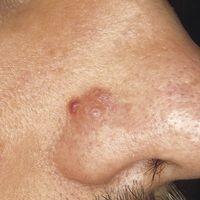 Amyloidosis cutis nodularis atrophicans. Solitärer, weicher, bräunlich-gelblicher Knoten am Nasen...