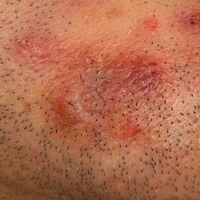 Amyloidose systemische: Rot-braune, symptomlose Papeln und Plaques. Bekannte HIV-Infektion.