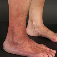 Acrodermatitis chronica atrophicans. Deutlich sichtbare, schlaffe Hautatrophie und ödematöse Rötu...