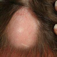 Alopecia areata: Große haarlose Fläche mit erhaltener Follkelstruktur.