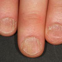 Alopecia areata: Diffuse, raue Keratinisierungsstörungen der Nägel (Trachyonychie)bei Alopecia ...