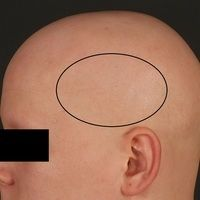 Alopecia areata totalis:kompletter Haarverlust an Capillitium und Augenbrauen. Eingekreist ein H...