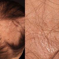 Alopecia areata. Rundliches, sich zentrifugal und medial ausbreitendes, glattes, haarloses Areal ...