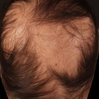 Alopecia areata. Rundliche, sich zentrifugal und medial ausbreitende, glatte, hautfarbene, haarlo...