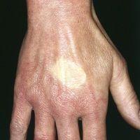 Akrozyanose. Diffuse, rötlich-livide Hautverfärbung bei herabgesetzter Temperatur sowie teigige S...