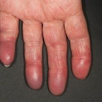 Akrozyanose in altersatrophisierter,glänzender Haut. Wechselnde temperaturabhaengig Faerbung von...