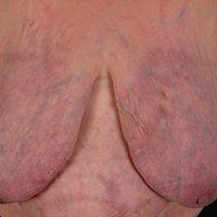 Atrophie der Haut durch langjährigen internen Gebrauch von Glukokortikoiden.