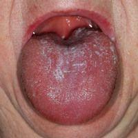 Angioödem: Akute Zungenschwellung nach Einnehme eines Antionbiotikums.