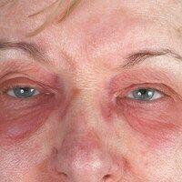 Dermatomyositis. Akut aufgetretene Lidödeme, mit unscharf begrenzten symmetrischen Eythemen. Al...