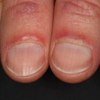 Dermatomyositis (Keining Zeichen): Flächige rote Plaques an den Endphalangen, periungual verstärk...