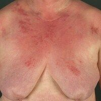 Dermatomyositis. Rot-violettes,wenig juckendes, flächiges. unscharf begrenztesErythem im Decoll...