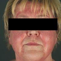 Dermatomyositis. Akut aufgetretenes heliotropes, sukkkulentes Exanthem; typische, ausgeprägte, sc...