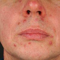 Acne papulopustulosa. In aknetypischer Verteilung, bei großporiger Haut, wenige rote glatte und e...