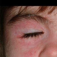 aaaDermatomyositis, juvenile ciclosporintherpaie.jpg