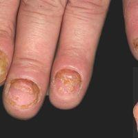 Acrodermatitis continua suppurativa, typisches klinisches Bild. Seit 1 Jahr rezdivierender Verlau...